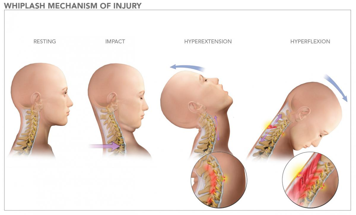 Whiplash Diagram. Whiplash is the most common car accident injury.